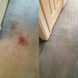 how to get blood stain out of carpet